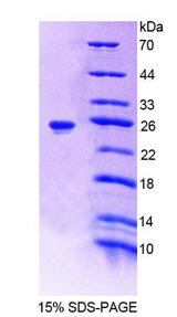 SHH / Sonic Hedgehog Protein - Recombinant Hedgehog Homolog, Sonic By SDS-PAGE