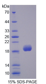 SOD3 Protein - Recombinant Superoxide Dismutase 3, Extracellular By SDS-PAGE