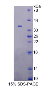 STAM1 / STAM Protein - Recombinant  Signal Transducing Adaptor Molecule 1 By SDS-PAGE