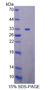 STAT2 Protein - Recombinant  Signal Transducer And Activator Of Transcription 2 By SDS-PAGE