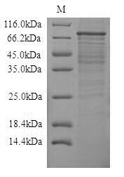 TLR4 Protein - (Tris-Glycine gel) Discontinuous SDS-PAGE (reduced) with 5% enrichment gel and 15% separation gel.