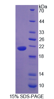 UCN3 / SPC Protein - Recombinant Urocortin 3 By SDS-PAGE