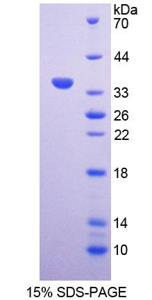 VG5Q / AGGF1 Protein - Recombinant  Angiogenic Factor With G Patch And FHA Domains 1 By SDS-PAGE