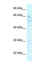 RBBP5 antibody LS-C109877 Western blot of HepG2 Cell lysate. Antibody concentration 1 ug/ml.  This image was taken for the unconjugated form of this product. Other forms have not been tested.