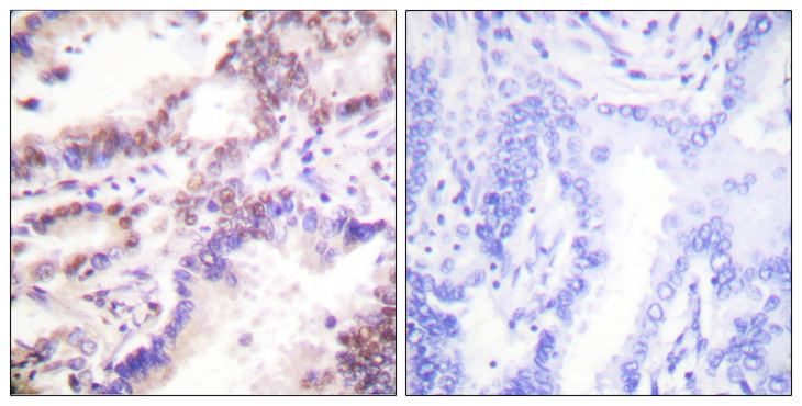 Immunohistochemistry analysis of paraffin-embedded human lung carcinoma tissue, using CTIP Antibody. The picture on the right is blocked with the synthesized peptide.
