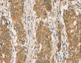 Immunohistochemistry of Human gastric cancer using RBBP8 Polyclonal Antibody at dilution of 1:65.
