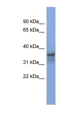RBFOX2 / RBM9 antibody LS-C110564 Western blot of NCI-H226 cell lysate.  This image was taken for the unconjugated form of this product. Other forms have not been tested.