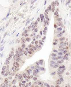 Detection of Human RBM12 by Immunohistochemistry. Sample: FFPE section of human ovarian carcinoma. Antibody: Affinity purified rabbit anti-RBM12 used at a dilution of 1:200 (1 ug/ml). Detection: DAB.