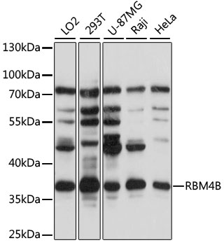 RBM4B Antibody - Western blot analysis of extracts of various cell lines, using RBM4B antibody at 1:1000 dilution. The secondary antibody used was an HRP Goat Anti-Rabbit IgG (H+L) at 1:10000 dilution. Lysates were loaded 25ug per lane and 3% nonfat dry milk in TBST was used for blocking. An ECL Kit was used for detection and the exposure time was 60s.