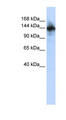 RBM6 antibody Western blot of HepG2 cell lysate. This image was taken for the unconjugated form of this product. Other forms have not been tested.
