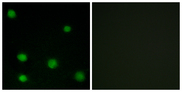 Immunofluorescence analysis of COS7 cells, using RBM6 Antibody. The picture on the right is blocked with the synthesized peptide.