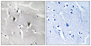Immunohistochemistry analysis of paraffin-embedded human brain tissue, using RBM6 Antibody. The picture on the right is blocked with the synthesized peptide.