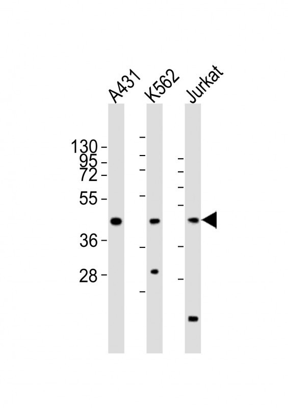 All lanes : Anti-RBMX Antibody at 1:2000 dilution Lane 1: A431 whole cell lysates Lane 2: K562 whole cell lysates Lane 3: Jurkat whole cell lysates Lysates/proteins at 20 ug per lane. Secondary Goat Anti-Rabbit IgG, (H+L), Peroxidase conjugated at 1/10000 dilution Predicted band size : 42 kDa Blocking/Dilution buffer: 5% NFDM/TBST.
