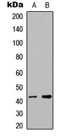 Western blot analysis of hnRNP G expression in Jurkat (A); RT4 (B) whole cell lysates.