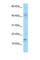 RBP2 / CRBPII Antibody - RBP2 antibody Western blot of HepG2 Cell lysate. Antibody concentration 1 ug/ml.  This image was taken for the unconjugated form of this product. Other forms have not been tested.
