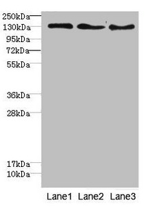 RBP2 / CRBPII Antibody - Western blot All Lanes:RBP2antibody at 1.76ug/ml Lane 1: Hela whole cell lysate Lane 2: HepG-2 whole cell lysate Lane 3: Jurkat whole cell lysate Secondary Goat polyclonal to Rabbit IgG at 1/10000 dilution Predicted band size: 192 kDa Observed band size: 192 kDa