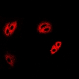 Immunofluorescent analysis of IRBP staining in MCF7 cells. Formalin-fixed cells were permeabilized with 0.1% Triton X-100 in TBS for 5-10 minutes and blocked with 3% BSA-PBS for 30 minutes at room temperature. Cells were probed with the primary antibody in 3% BSA-PBS and incubated overnight at 4 deg C in a humidified chamber. Cells were washed with PBST and incubated with a DyLight 594-conjugated secondary antibody (red) in PBS at room temperature in the dark.