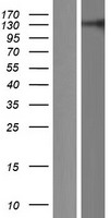 RC3H2 Protein - Western validation with an anti-DDK antibody * L: Control HEK293 lysate R: Over-expression lysate