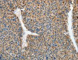 Immunohistochemistry of paraffin-embedded Human liver cancer using RCAN1 Polyclonal Antibody at dilution of 1:45.