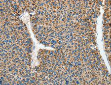 RCAN1 / DSCR1 Antibody - Immunohistochemistry of paraffin-embedded Human liver cancer using RCAN1 Polyclonal Antibody at dilution of 1:45.