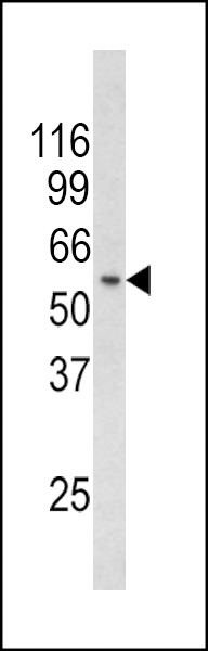 Western blot of CHC1L Antibody in mouse thymus tissue lysates (35 ug/lane). CHC1L (arrow) was detected using the purified antibody.