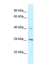 RCC1 antibody Western blot of H226 Cell lysate. Antibody concentration 1 ug/ml.  This image was taken for the unconjugated form of this product. Other forms have not been tested.