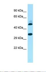 Western blot of Human 721_B. RQCD1 antibody dilution 1.0 ug/ml.  This image was taken for the unconjugated form of this product. Other forms have not been tested.