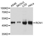 Western blot analysis of extracts of various cell lines, using RCN1 antibody at 1:1000 dilution. The secondary antibody used was an HRP Goat Anti-Rabbit IgG (H+L) at 1:10000 dilution. Lysates were loaded 25ug per lane and 3% nonfat dry milk in TBST was used for blocking. An ECL Kit was used for detection and the exposure time was 1s.