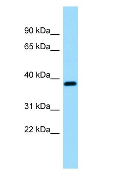 RCN3 antibody Western Blot of Fetal Brain.  This image was taken for the unconjugated form of this product. Other forms have not been tested.