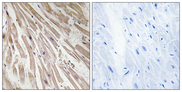 Immunohistochemistry analysis of paraffin-embedded human heart tissue, using ARPP21 Antibody. The picture on the right is blocked with the synthesized peptide.