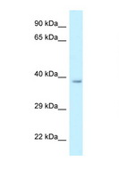 RDH10 Antibody - RDH10 antibody Western blot of Rat Liver lysate. Antibody concentration 1 ug/ml.  This image was taken for the unconjugated form of this product. Other forms have not been tested.
