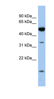 RDH12 antibody LS-C111452 Western blot of Fetal Intestine lysate.  This image was taken for the unconjugated form of this product. Other forms have not been tested.