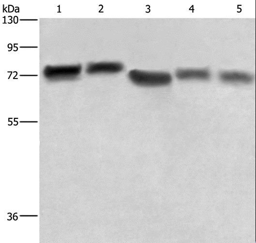 RDX / Radixin Antibody - Western blot analysis of HeLa cell and human brain tissue, 293T cell, human hepatocellular carcinoma tissue and NIH/3T3 cell, using RDX Polyclonal Antibody at dilution of 1:600.