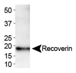 Recoverin Antibody (6A55CD6) -Western blot of Recoverin expression in human brain.  This image was taken for the unconjugated form of this product. Other forms have not been tested.