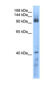 RECQL5 antibody LS-C40302 Western blot of Transfected 293T cell lysate.  This image was taken for the unconjugated form of this product. Other forms have not been tested.