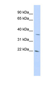 DDIT4L antibody Western blot of 293T cell lysate. This image was taken for the unconjugated form of this product. Other forms have not been tested.