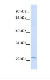 REEP1 Antibody - Fetal muscle lysate. Antibody concentration: 1.0 ug/ml. Gel concentration: 12%.  This image was taken for the unconjugated form of this product. Other forms have not been tested.