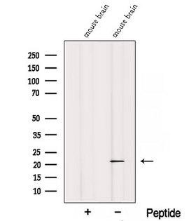 REEP1 Antibody - Western blot analysis of extracts of mouse brain tissue using REEP1 antibody. The lane on the left was treated with blocking peptide.