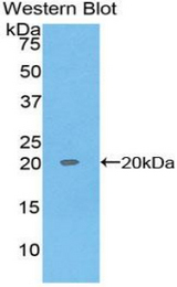 Western blot of recombinant REG1A / REG.  This image was taken for the unconjugated form of this product. Other forms have not been tested.