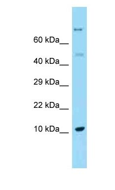 REG1A / REG antibody Western Blot of Fetal Liver. Antibody dilution: 1 ug/ml.  This image was taken for the unconjugated form of this product. Other forms have not been tested.