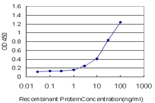 Detection limit for recombinant GST tagged REG1A is approximately 1 ng/ml as a capture antibody.