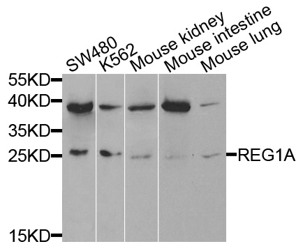 Western blot blot of extracts of various cells, using REG1A antibody.
