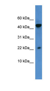 REG3A antibody LS-C135250 Western blot of HeLa lysate.  This image was taken for the unconjugated form of this product. Other forms have not been tested.