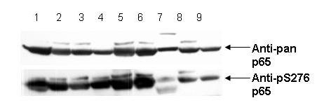 RELA / NFKB p65 Antibody - Western Blot - Anti-NFKB p65 (Rel A) pS276 Antibody. Anti-pS276 shows phospho p65 staining in carcinoma cells. Western blot of total protein lysates from various human head and neck tumors shows phospho p65 staining in tumor cell lines using phospho specific polyclonal anti-human pS276 p65. Lanes 1-6 contain protein lysates from human squamous carcinoma cell lines. Lane 7 is a protein lysate from a primary culture of human keratinocytes and does not show significant levels of phosphorylated p65. Lane 8 contains protein lysate from ATCC SCC9 cells (also a head and neck squamous carcinoma). Lane 9 contains lysate from EGF-induced human derived A431 cells. Lane 10 (not shown) contains a molecular weight standard. Concurrent staining with anti-beta microtubulin (not shown) was used to confirm equal protein loading in all lanes. HRP conjugated Gt-anti-Rabbit IgG was used to develop the blot using a chemiluminescent detection method. Other detection methods will yield similar results. Data contributed by Yu, M., NIH, personal communication.