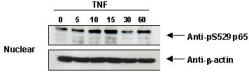 RELA / NFKB p65 Antibody - Western Blot - Anti-NFKB p65 (Rel A) pS276 Antibody. TNF Induces phosphorylation of p65 in KBM-5 cells.