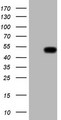 HEK293T cells were transfected with the pCMV6-ENTRY control (Left lane) or pCMV6-ENTRY REN (Right lane) cDNA for 48 hrs and lysed. Equivalent amounts of cell lysates (5 ug per lane) were separated by SDS-PAGE and immunoblotted with anti-REN.