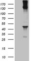 HEK293T cells were transfected with the pCMV6-ENTRY control (Left lane) or pCMV6-ENTRY REN (Right lane) cDNA for 48 hrs and lysed. Equivalent amounts of cell lysates (5 ug per lane) were separated by SDS-PAGE and immunoblotted with anti-REN (1:500).