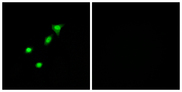 Immunofluorescence analysis of A549 cells, using REQU Antibody. The picture on the right is blocked with the synthesized peptide.