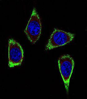 RET Antibody - Confocal immunofluorescence of RET Antibody (Ascites) with MDA-MB231 cell followed by Alexa Fluor 488-conjugated goat anti-mouse lgG (green). Actin filaments have been labeled with Alexa Fluor? 555 phalloidin (red). DAPI was used to stain the cell nuclear (blue).