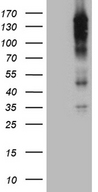 REV1 Antibody - HEK293T cells were transfected with the pCMV6-ENTRY control. (Left lane) or pCMV6-ENTRY REV1. (Right lane) cDNA for 48 hrs and lysed. Equivalent amounts of cell lysates. (5 ug per lane) were separated by SDS-PAGE and immunoblotted with anti-REV1. (1:2000)